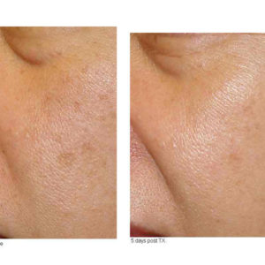 Before-and-After-IPLphotfacial-web